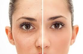 keto clearer skin